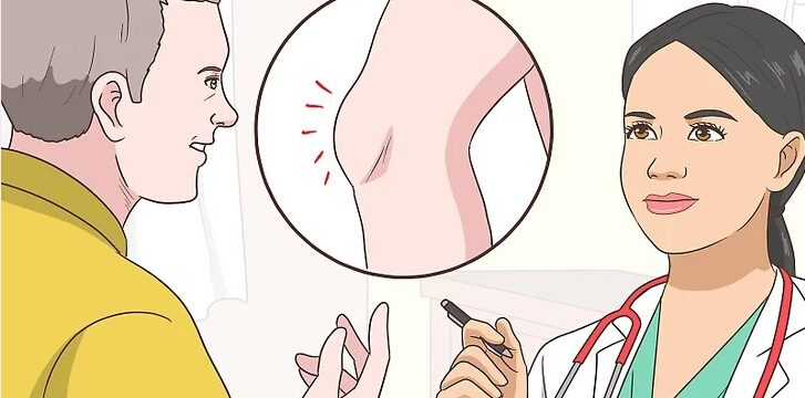Chondroitin Sulfate knee